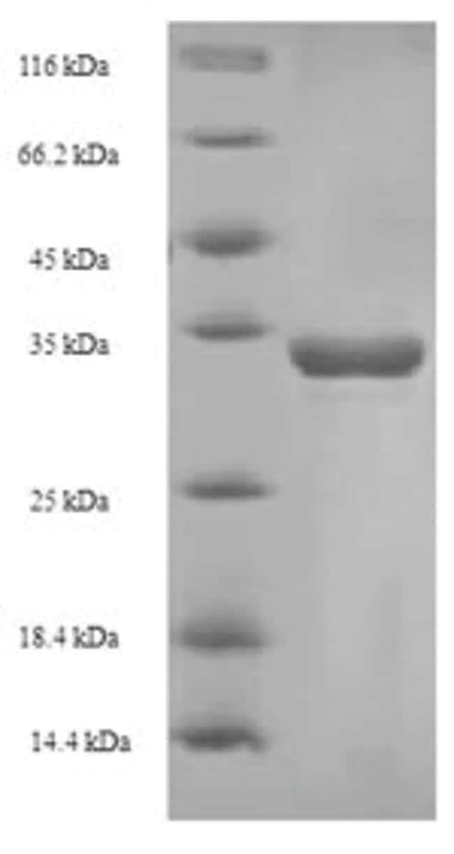 enQuireBio™Recombinant Bovine CD8A / MAL Protein 10μg enQuireBio™Recombinant Bovine CD8A / MAL Protein