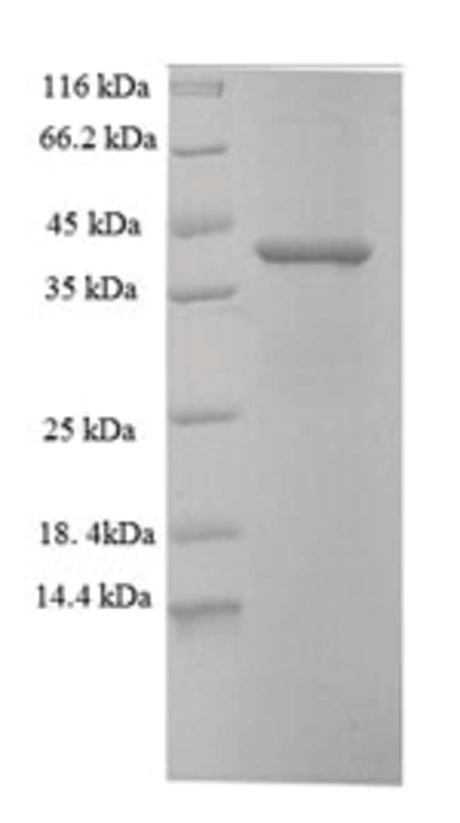 enQuireBio™Recombinant Human CDK2AP1 Protein 1mg enQuireBio™Recombinant Human CDK2AP1 Protein