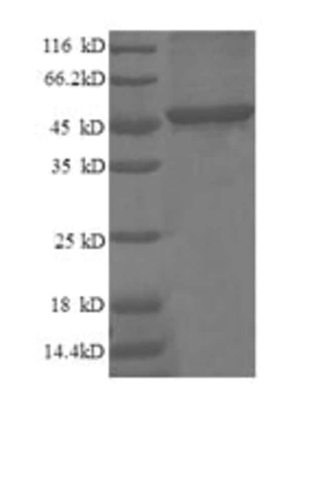 enQuireBio™Recombinant Human p21WAF1 Protein 100μg enQuireBio™Recombinant Human p21WAF1 Protein