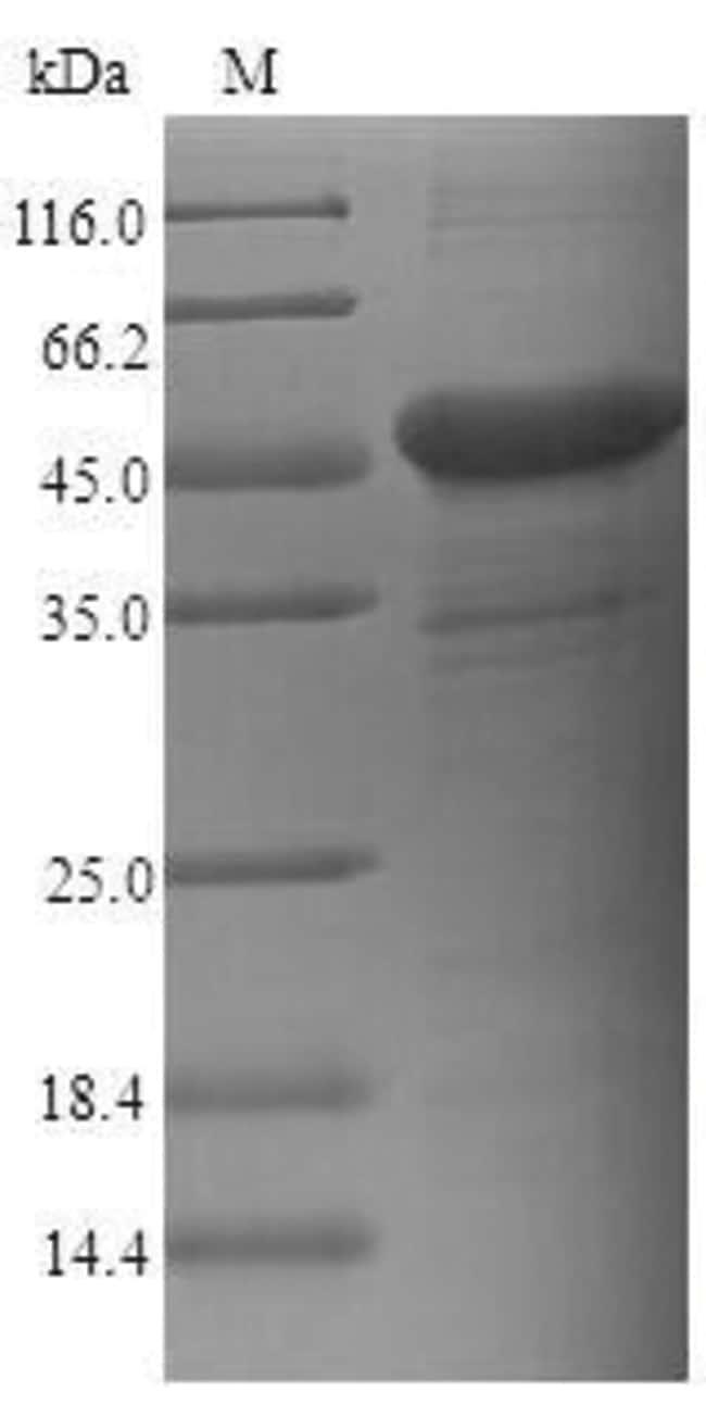 enQuireBio™Recombinant Human CEACAM6 Protein 1mg enQuireBio™Recombinant Human CEACAM6 Protein