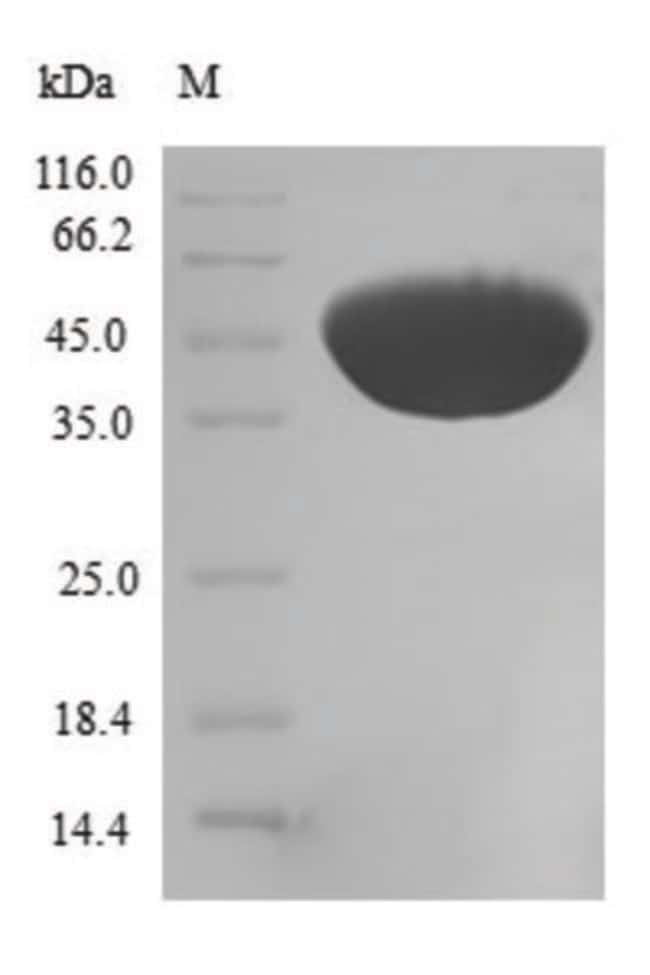 enQuireBio™Recombinant Human CFL2 / cofilin 2 / ADF Protein 500μg enQuireBio™Recombinant Human CFL2 / cofilin 2 / ADF Protein