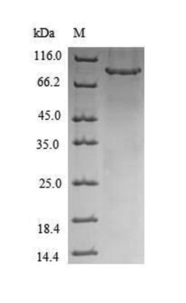 enQuireBio™Recombinant Human CHM Protein 1mg enQuireBio™Recombinant Human CHM Protein