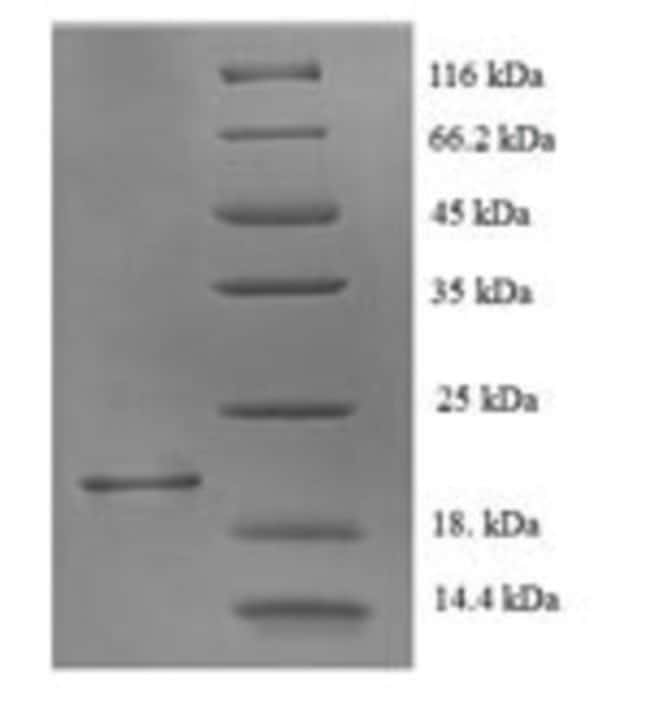 enQuireBio™Recombinant Rat Muscarinic acetylcholine receptor M1 Protein 10μg enQuireBio™Recombinant Rat Muscarinic acetylcholine receptor M1 Protein