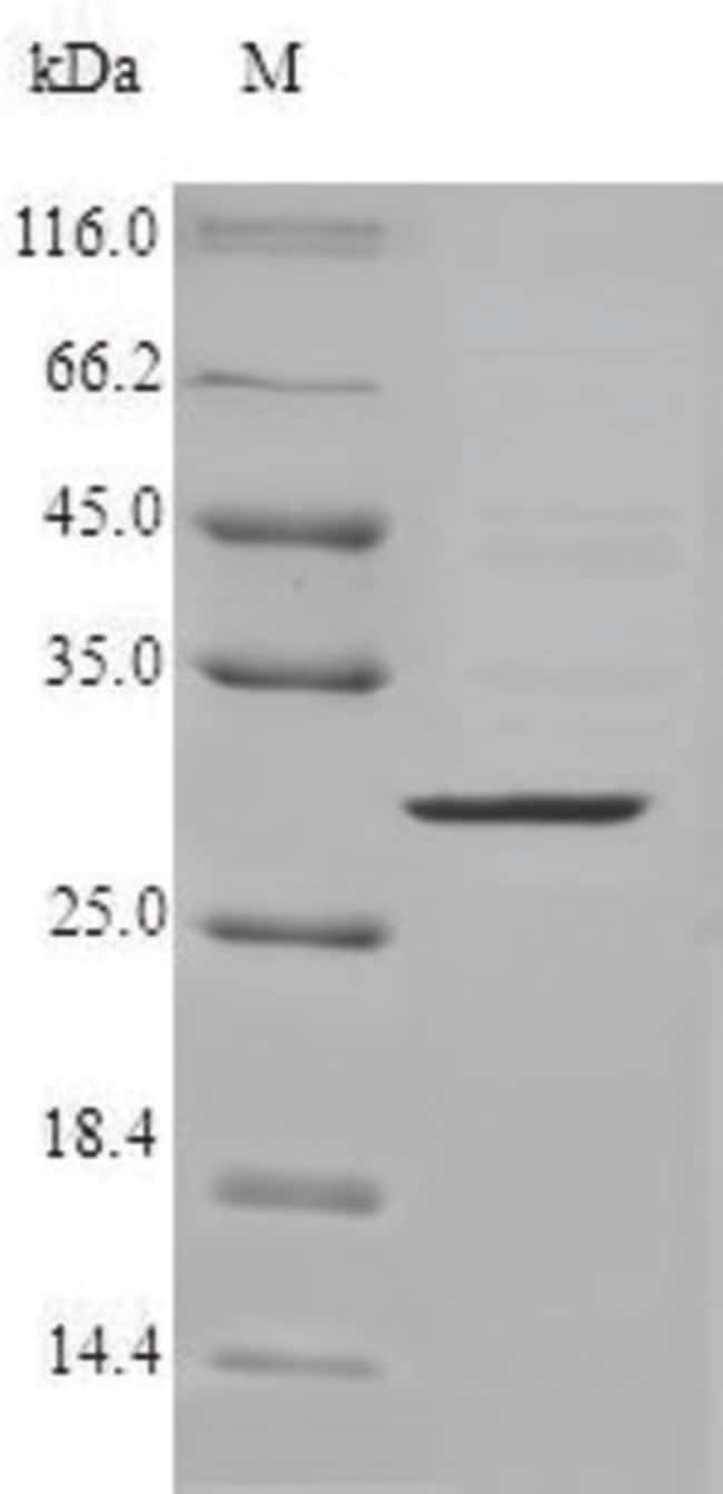 enQuireBio™Recombinant Human CMA1 / Chymase 1 Protein 10μg enQuireBio™Recombinant Human CMA1 / Chymase 1 Protein