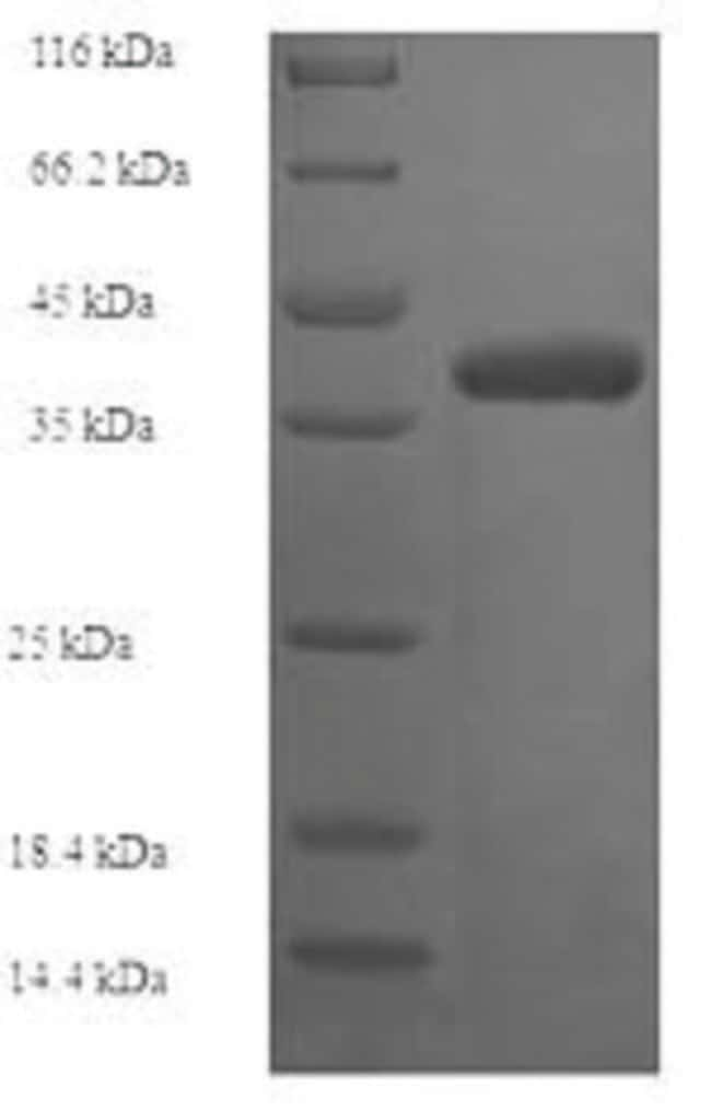 enQuireBio™ Recombinant Human Collagen alpha-1(IV) chain Protein 50μg enQuireBio™ Recombinant Human Collagen alpha-1(IV) chain Protein