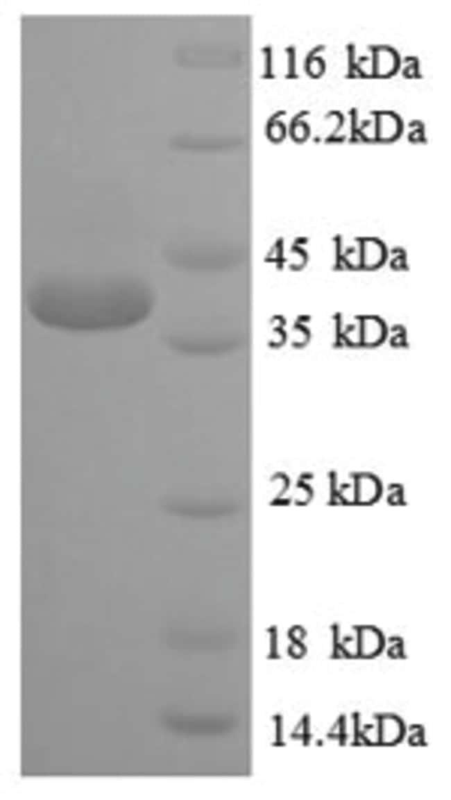 enQuireBio™Recombinant Human CREB1 Protein 10μg enQuireBio™Recombinant Human CREB1 Protein