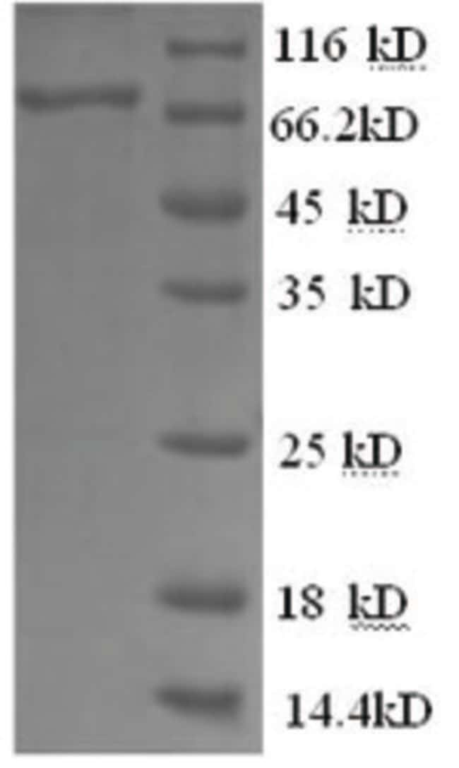 enQuireBio™ Recombinant Cat CSF1R / MCSF Receptor / CD115 Protein 1mg enQuireBio™ Recombinant Cat CSF1R / MCSF Receptor / CD115 Protein