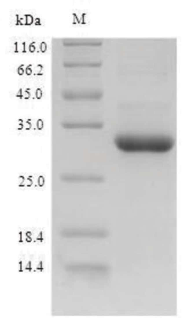 enQuireBio™ Recombinant Dog G-CSF / CSF3 Protein 500μg enQuireBio™ Recombinant Dog G-CSF / CSF3 Protein