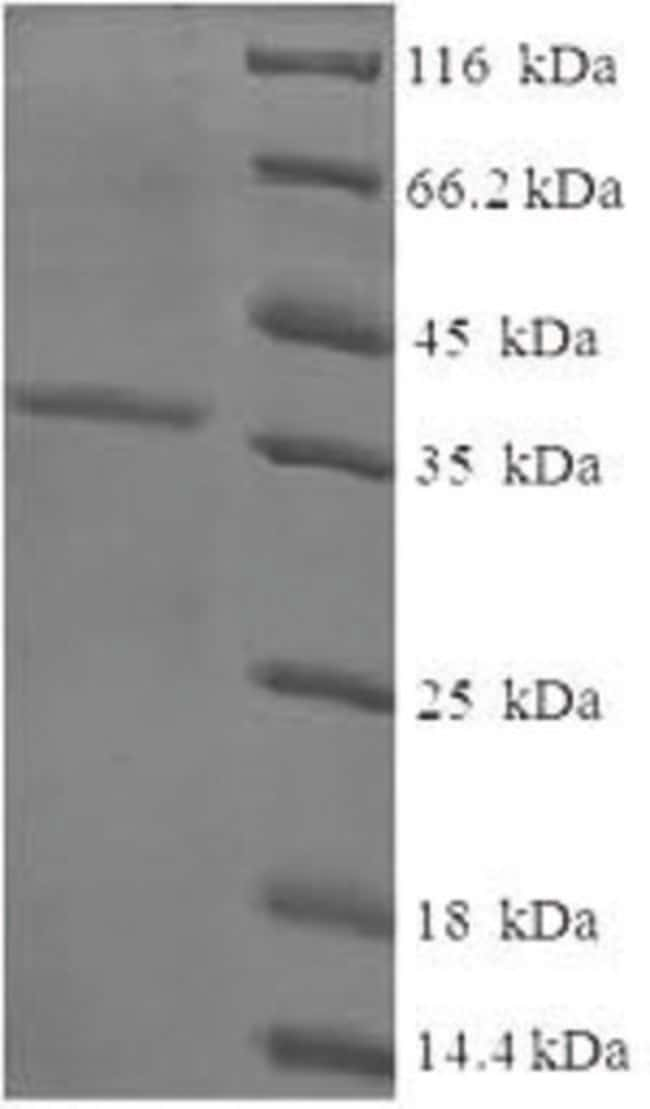 enQuireBio™Recombinant Human Cysteine and glycine-rich protein 1 200μg enQuireBio™Recombinant Human Cysteine and glycine-rich protein 1