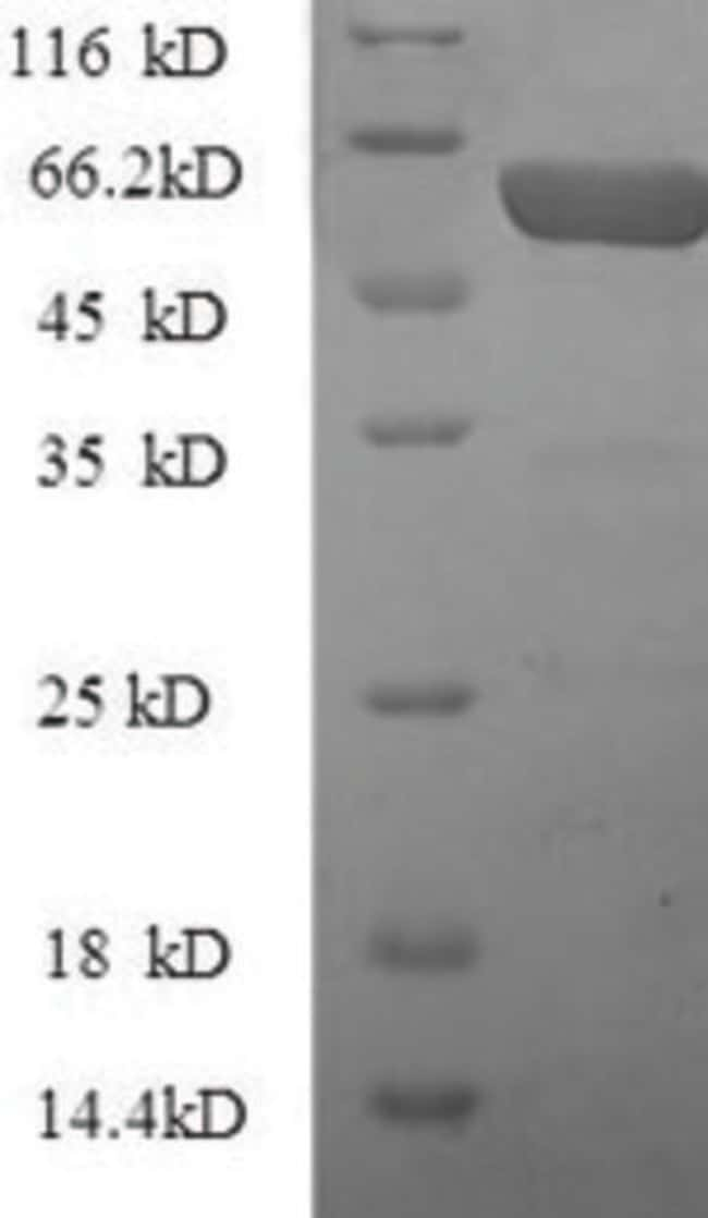 enQuireBio™Recombinant Mouse CTGF Protein 500μg enQuireBio™Recombinant Mouse CTGF Protein