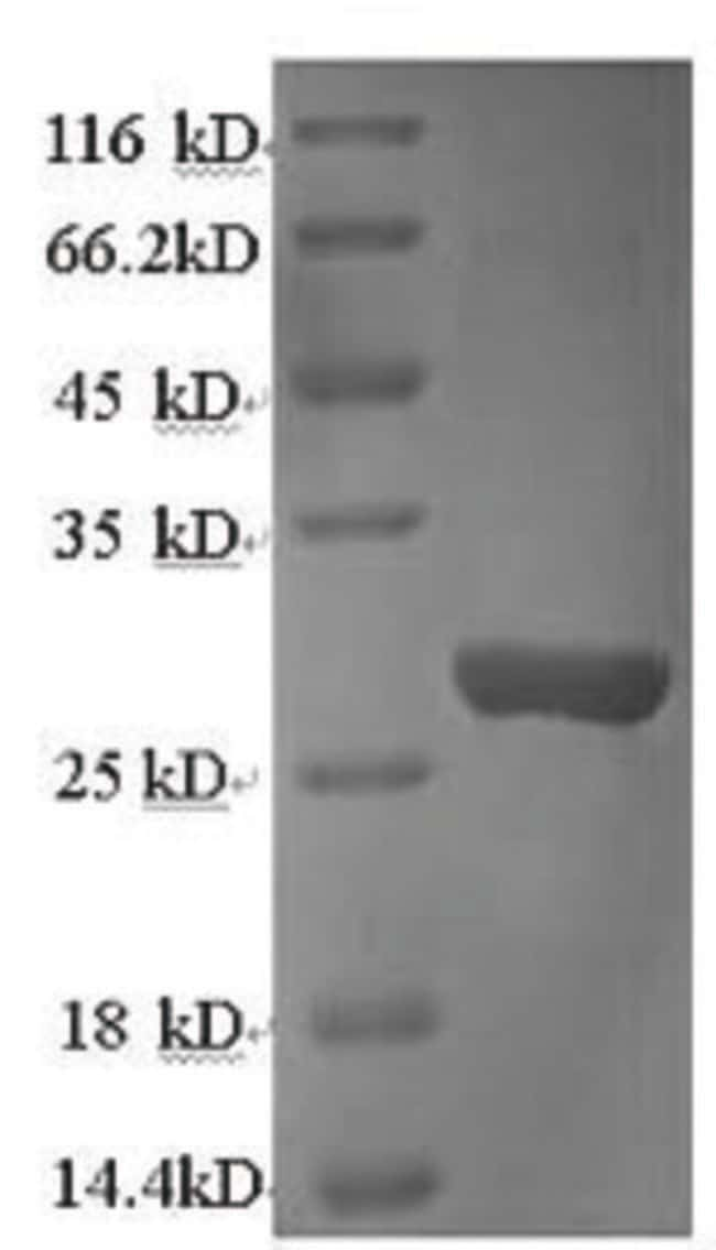 enQuireBio™ Recombinant Rat Cathepsin K Protein 10μg enQuireBio™ Recombinant Rat Cathepsin K Protein