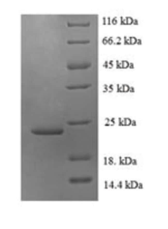 enQuireBio™Recombinant Human Fractalkine / CX3CL1 Protein 500μg enQuireBio™Recombinant Human Fractalkine / CX3CL1 Protein