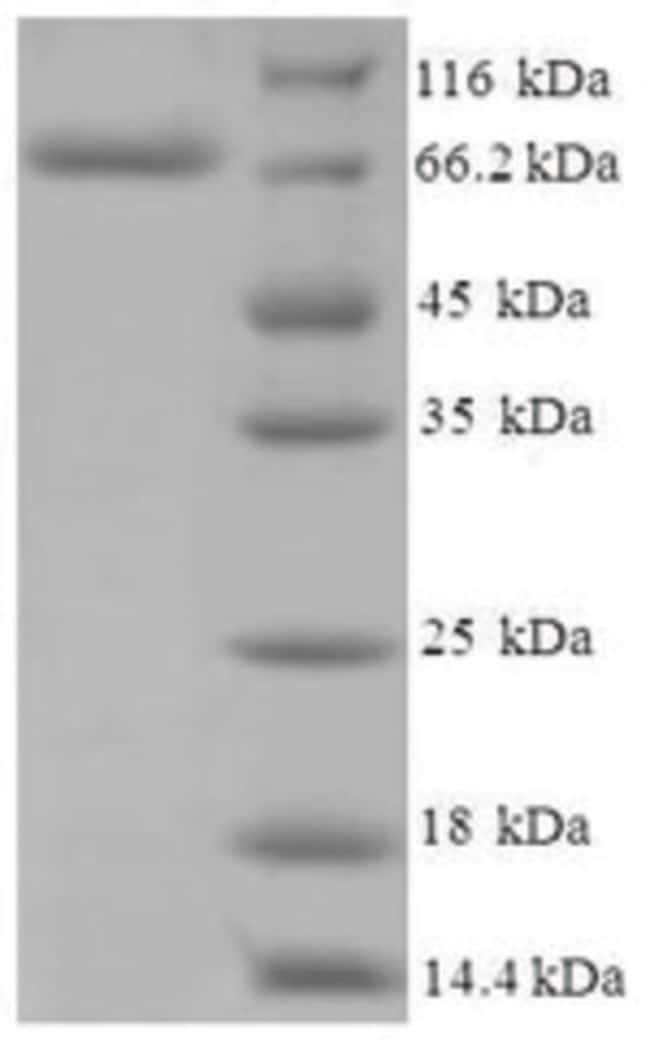 enQuireBio™ Recombinant Human CYP11A1 Protein 1mg enQuireBio™ Recombinant Human CYP11A1 Protein
