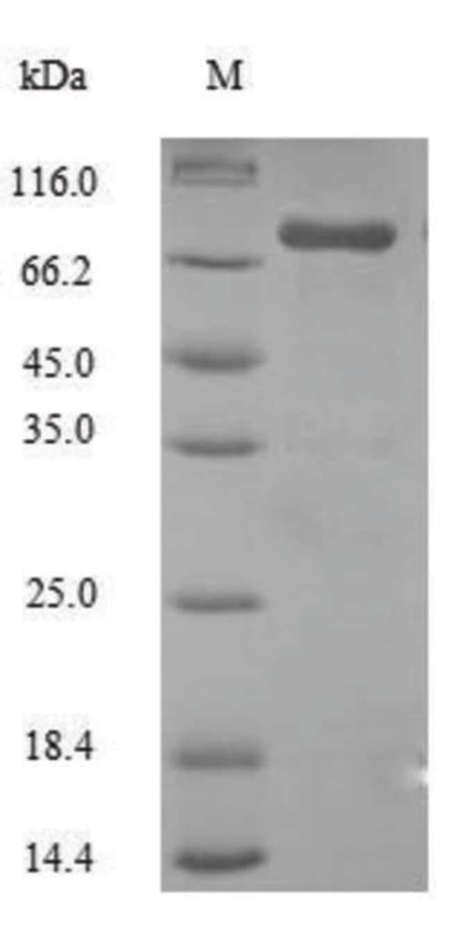 enQuireBio™Recombinant Human Steroid 17-alpha-hydroxylase / 17,20 lyase Protein 50μg enQuireBio™Recombinant Human Steroid 17-alpha-hydroxylase / 17,20 lyase Protein