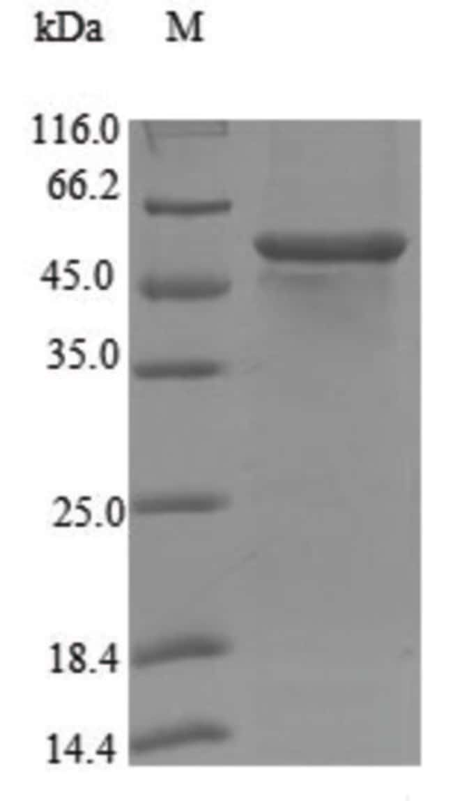 enQuireBio™Recombinant Human Steroid 17-alpha-hydroxylase / 17,20 lyase Protein 100μg enQuireBio™Recombinant Human Steroid 17-alpha-hydroxylase / 17,20 lyase Protein