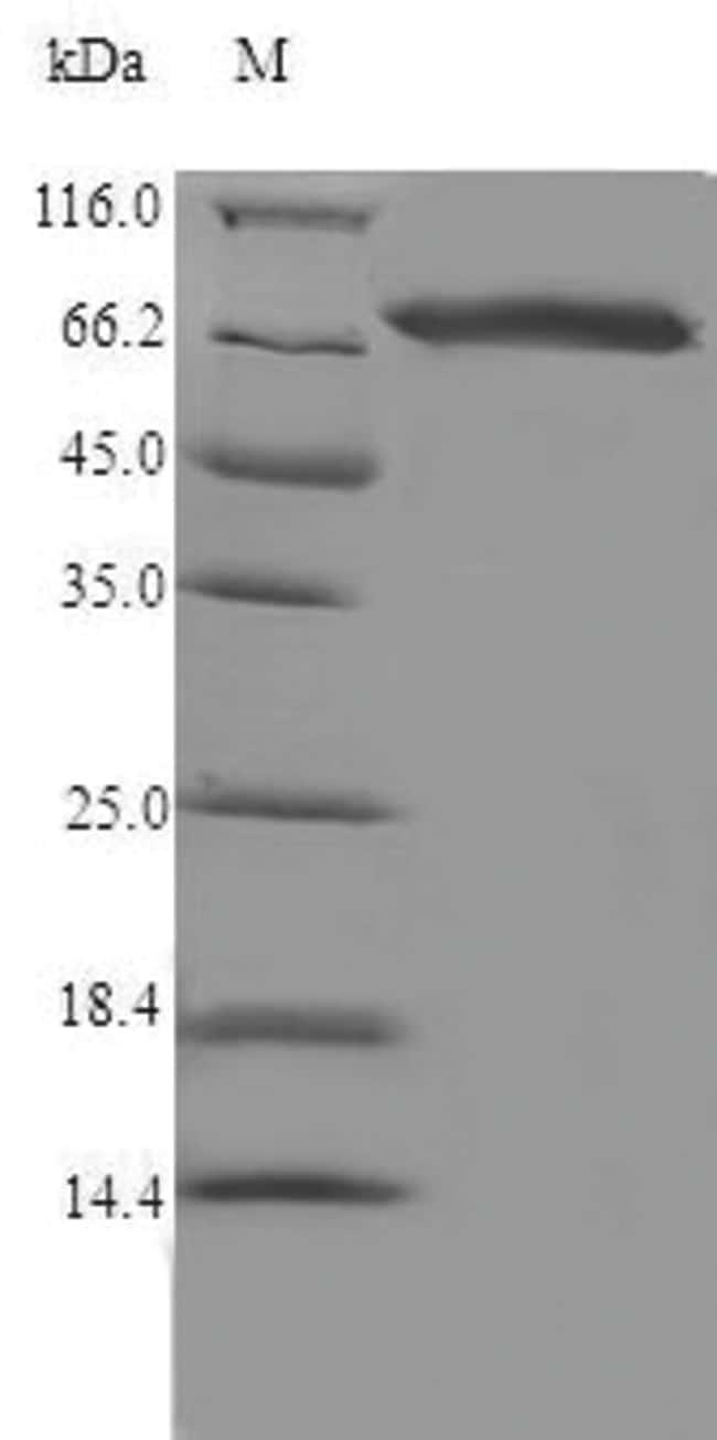 enQuireBio™Recombinant Rat Steroid 17-alpha-hydroxylase / 17,20 lyase Protein 500μg enQuireBio™Recombinant Rat Steroid 17-alpha-hydroxylase / 17,20 lyase Protein