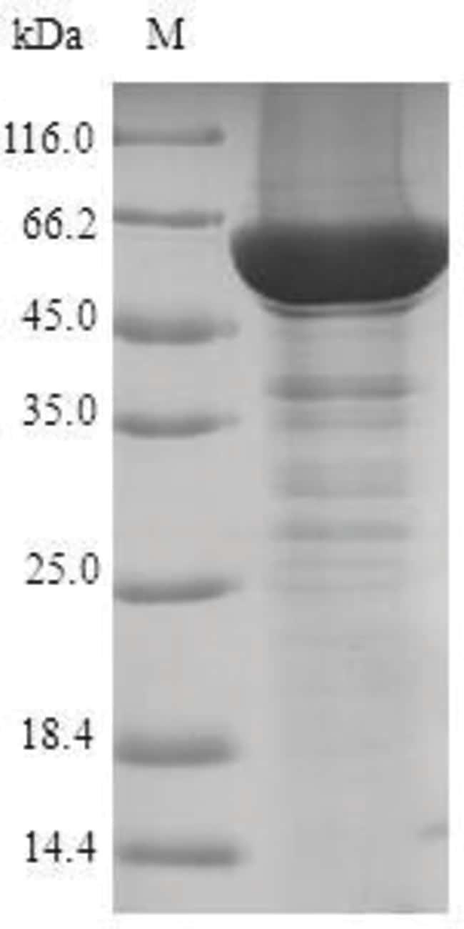 enQuireBio™Recombinant Human Steroid 21-hydroxylase Protein 10μg enQuireBio™Recombinant Human Steroid 21-hydroxylase Protein
