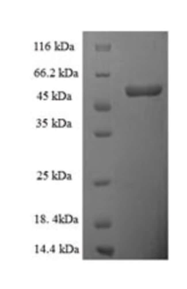 enQuireBio™Recombinant Human D-amino-acid oxidase Protein 500μg enQuireBio™Recombinant Human D-amino-acid oxidase Protein