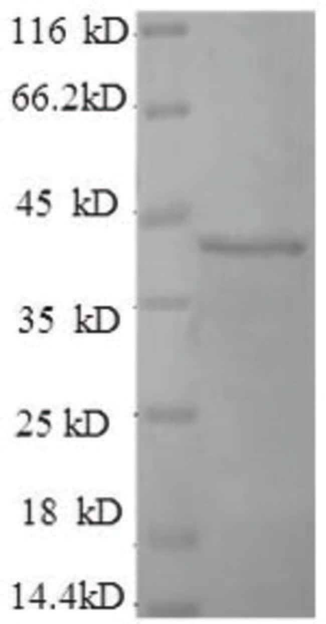 enQuireBio™Recombinant Human D-amino acid oxidase activator Protein 1mg enQuireBio™Recombinant Human D-amino acid oxidase activator Protein