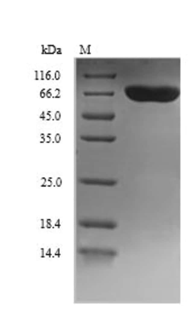 enQuireBio™Recombinant Human DBH / Dopamine beta-Hydroxylase Protein 100μg enQuireBio™Recombinant Human DBH / Dopamine beta-Hydroxylase Protein