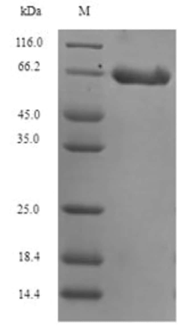 enQuireBio™Recombinant Human DCX Protein 100μg enQuireBio™Recombinant Human DCX Protein