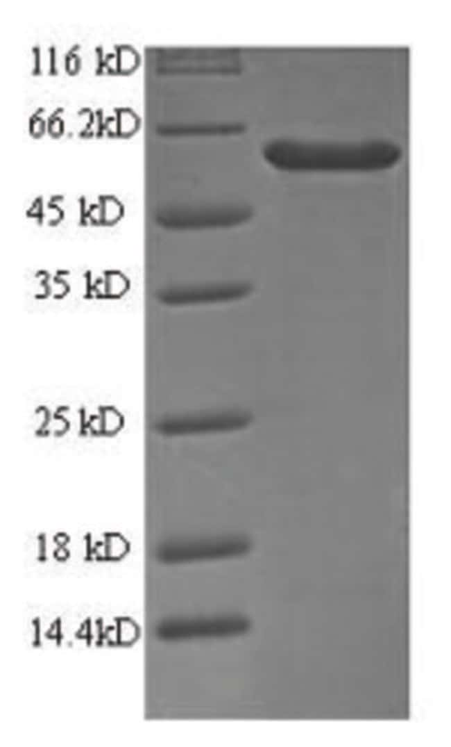 enQuireBio™Recombinant Human Probable ATP-dependent RNA helicase DDX58 Protein 1mg enQuireBio™Recombinant Human Probable ATP-dependent RNA helicase DDX58 Protein