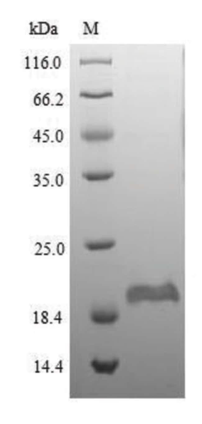enQuireBio™Recombinant Mouse DEFB1 / Beta-defensin 1 Protein 200μg enQuireBio™Recombinant Mouse DEFB1 / Beta-defensin 1 Protein