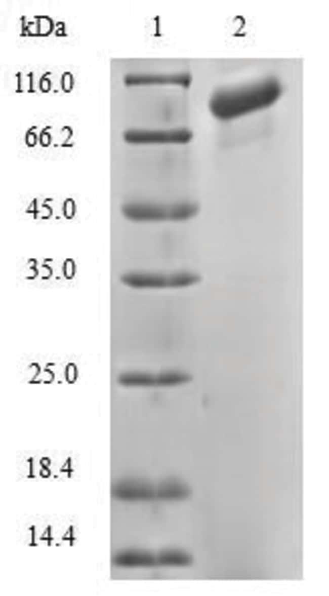 enQuireBio™Recombinant Human Diacylglycerol kinase alpha Protein 100μg enQuireBio™Recombinant Human Diacylglycerol kinase alpha Protein