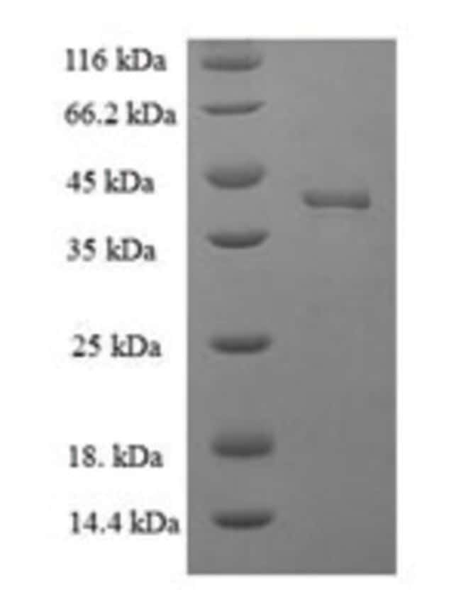 enQuireBio™Recombinant Human Docking protein 1 1mg enQuireBio™Recombinant Human Docking protein 1