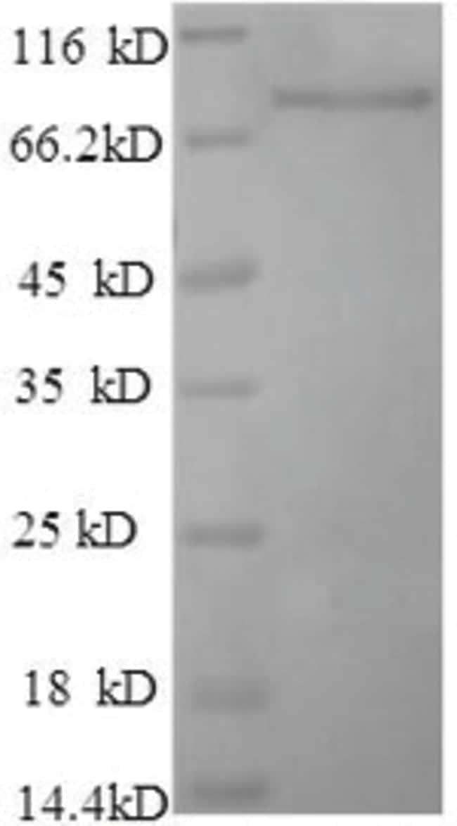 enQuireBio™Recombinant Rat Dipeptidyl aminopeptidase-like protein 1 100μg enQuireBio™Recombinant Rat Dipeptidyl aminopeptidase-like protein 1