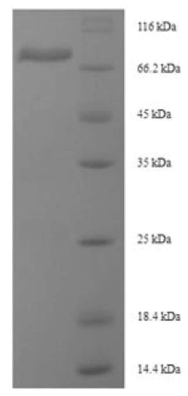 enQuireBio™Recombinant Mouse Desmoglein-3 Protein 500μg enQuireBio™Recombinant Mouse Desmoglein-3 Protein
