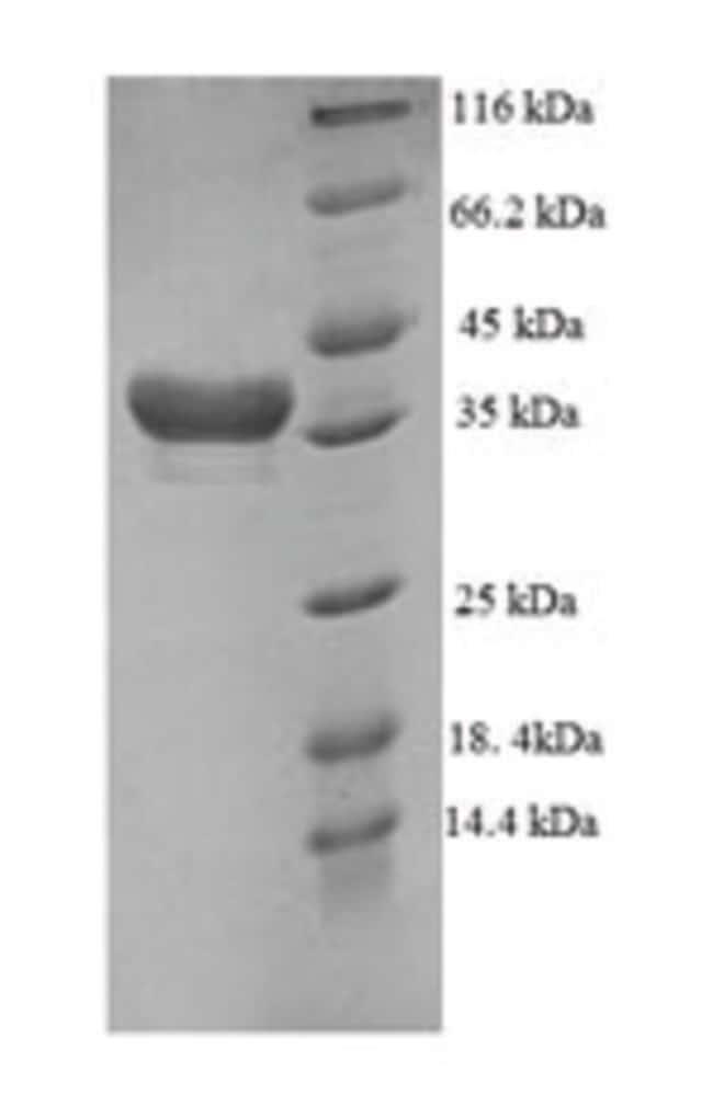 enQuireBio™Recombinant Human DTW domain-containing protein 1 100μg enQuireBio™Recombinant Human DTW domain-containing protein 1