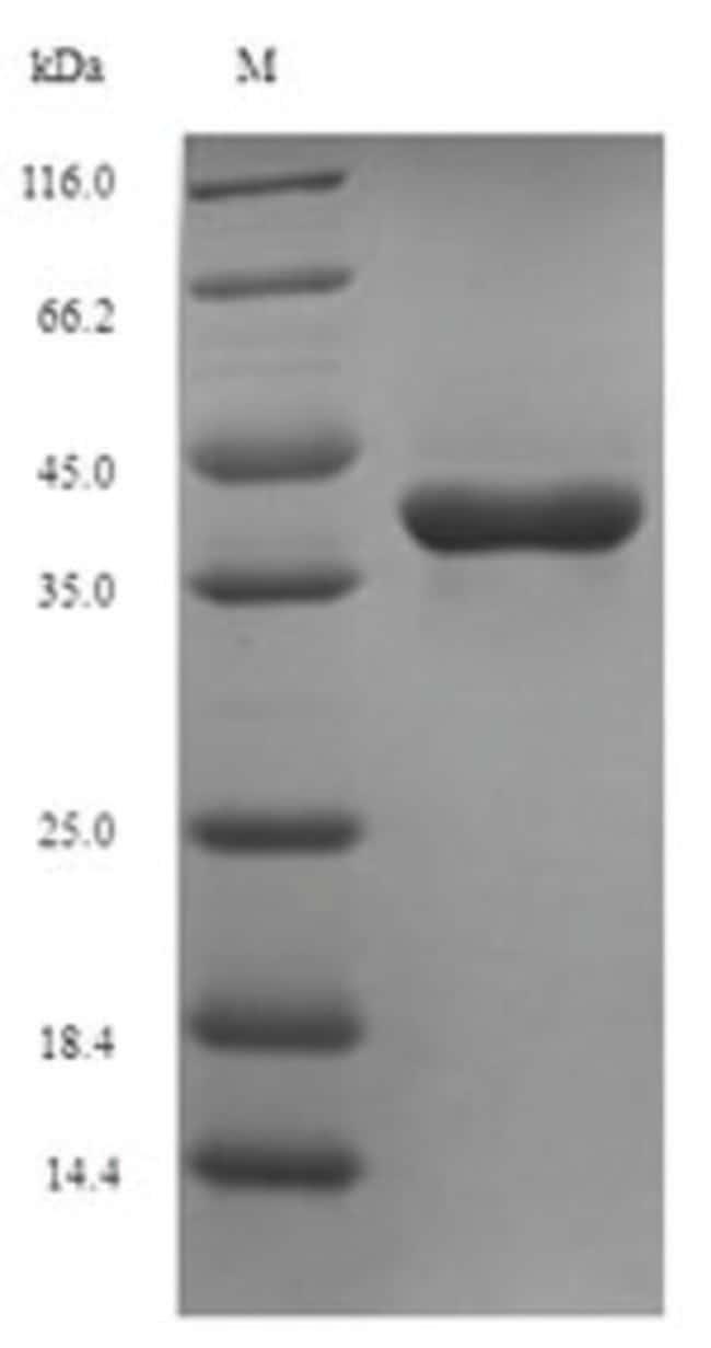 enQuireBio™Recombinant M. tuberculosis Thymidylate kinase Protein 1mg enQuireBio™Recombinant M. tuberculosis Thymidylate kinase Protein