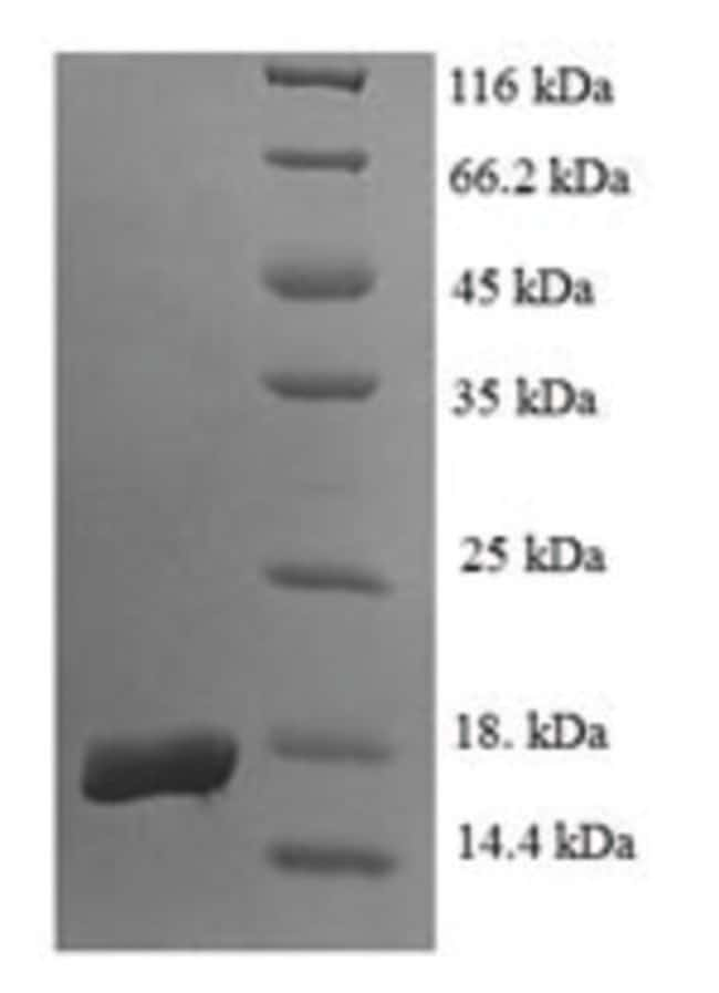 enQuireBio™Recombinant Human Egl nine homolog 2 Protein 1mg enQuireBio™Recombinant Human Egl nine homolog 2 Protein