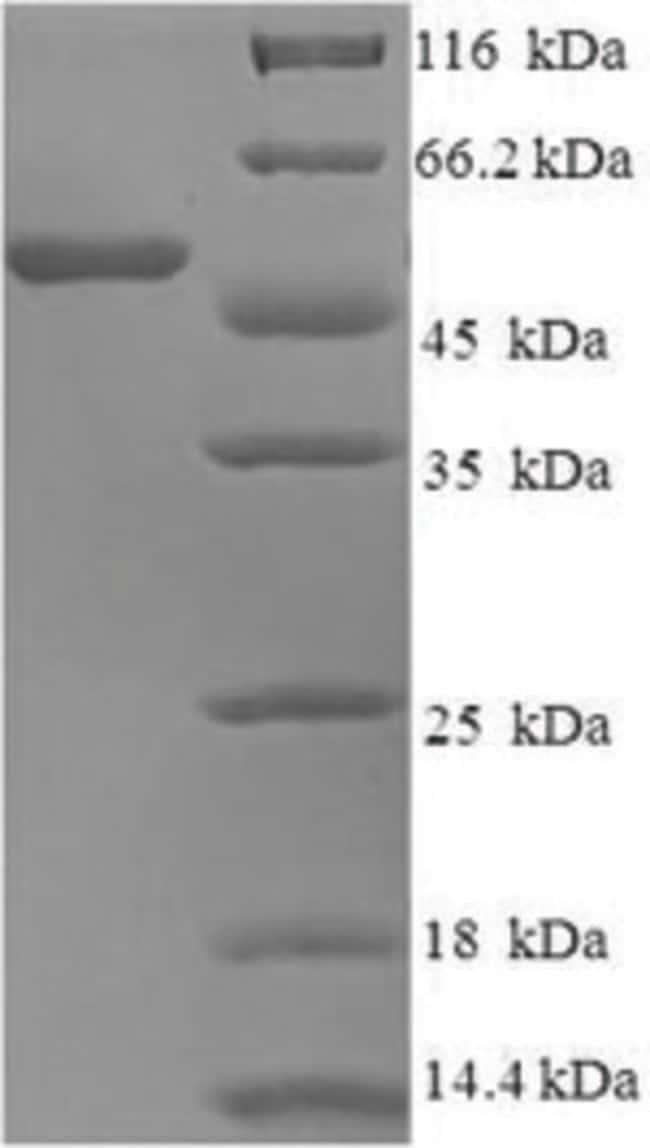 enQuireBio™Recombinant Human Neutrophil elastase Protein 100μg enQuireBio™Recombinant Human Neutrophil elastase Protein