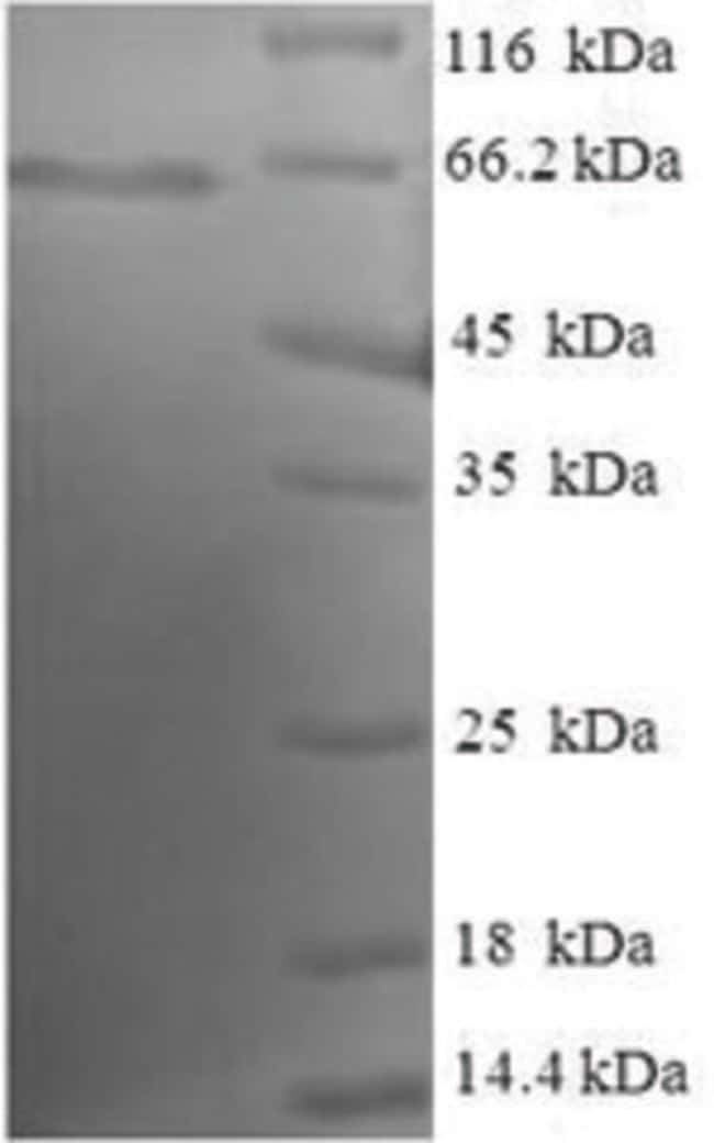 enQuireBio™ Recombinant Human EML2 Protein 1mg enQuireBio™ Recombinant Human EML2 Protein