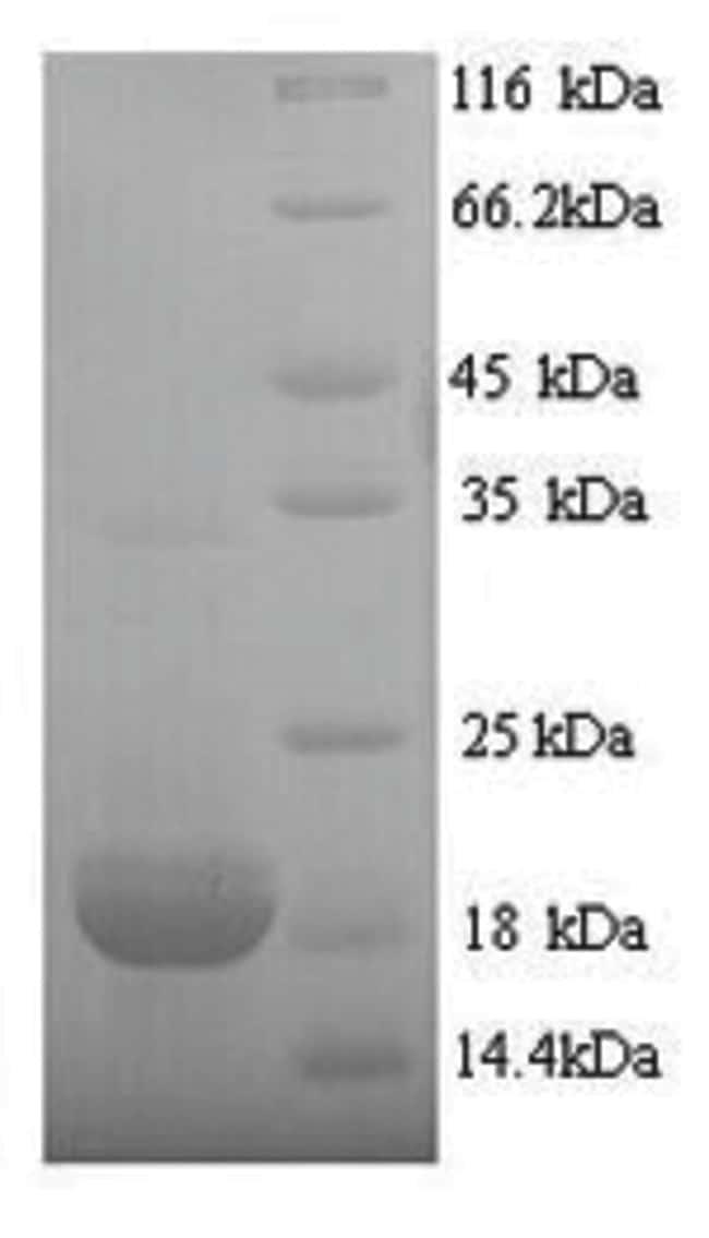 enQuireBio™Recombinant Pig Erythropoietin / EPO Protein 10μg enQuireBio™Recombinant Pig Erythropoietin / EPO Protein