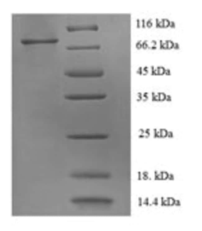 enQuireBio™Recombinant Human HER2 / ErbB2 Protein 200μg enQuireBio™Recombinant Human HER2 / ErbB2 Protein