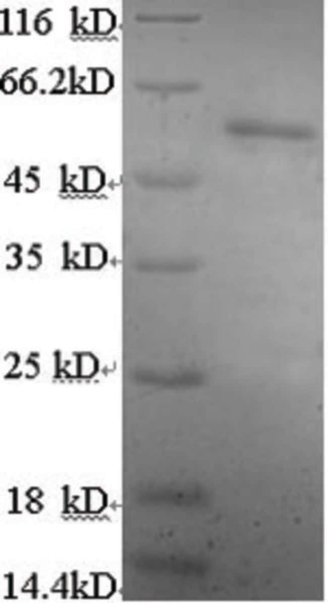 enQuireBio™Recombinant Human Estrogen Receptor 2 Protein: Proteínas A-Z Proteínas