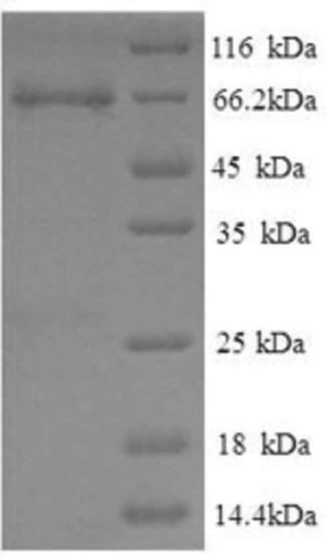 enQuireBio™Recombinant Pig ETFDH Protein 1mg enQuireBio™Recombinant Pig ETFDH Protein