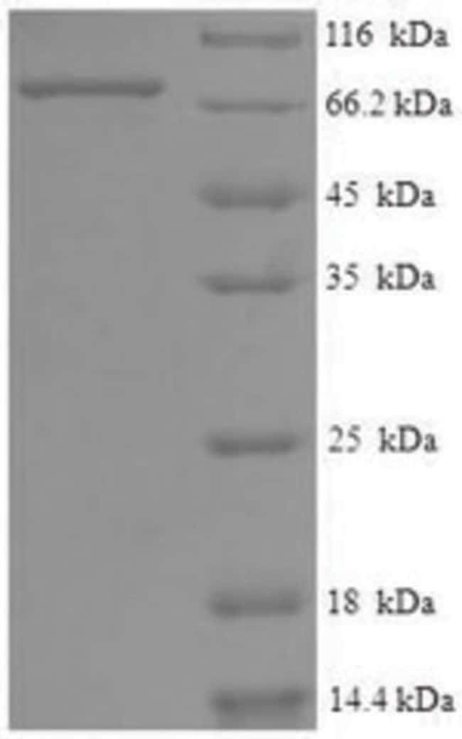 enQuireBio™ Recombinant Human Eyes absent homolog 2 Protein 200μg enQuireBio™ Recombinant Human Eyes absent homolog 2 Protein