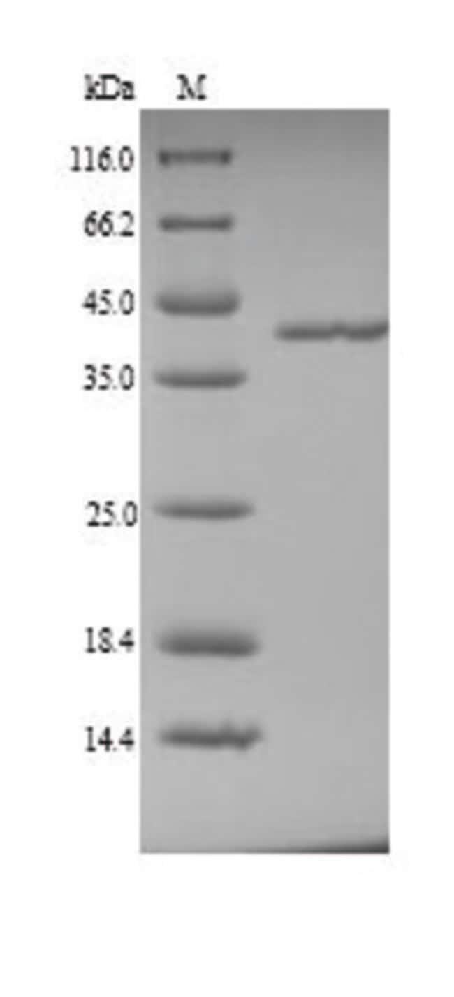 enQuireBio™Recombinant Pig Coagulation factor XII Protein 100μg enQuireBio™Recombinant Pig Coagulation factor XII Protein