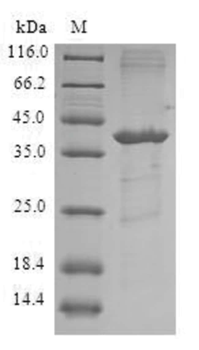 enQuireBio™Recombinant Human FABP5 / E-FABP Protein 1mg enQuireBio™Recombinant Human FABP5 / E-FABP Protein