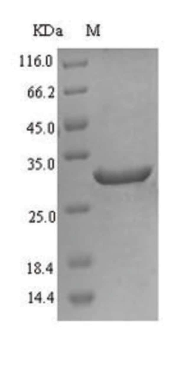 enQuireBio™Recombinant Human Fatty acid desaturase 2 Protein 1mg enQuireBio™Recombinant Human Fatty acid desaturase 2 Protein