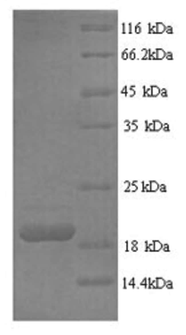 enQuireBio™Recombinant Human Fas Ligand / FASLG / CD95L Protein 1mg enQuireBio™Recombinant Human Fas Ligand / FASLG / CD95L Protein