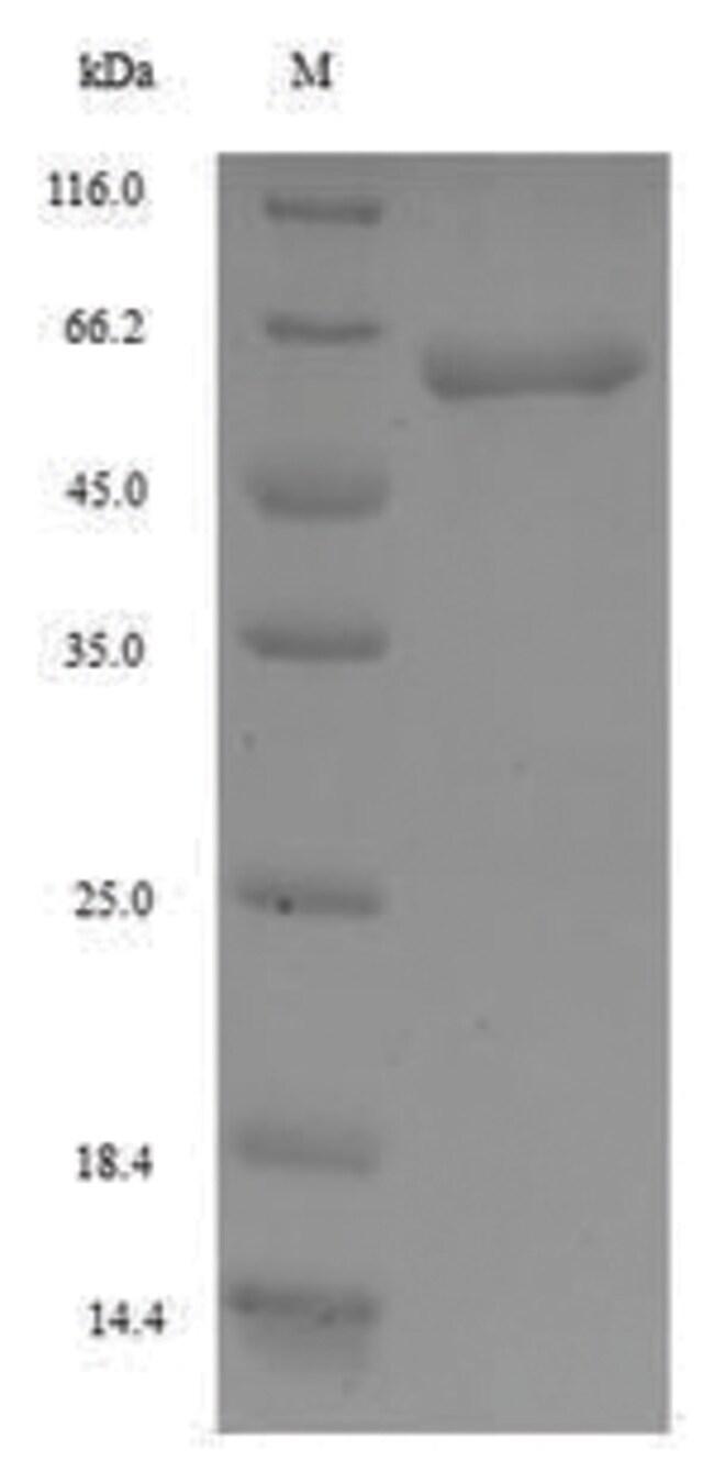 enQuireBio™Recombinant Human F-box / WD repeat-containing protein 1 1mg enQuireBio™Recombinant Human F-box / WD repeat-containing protein 1