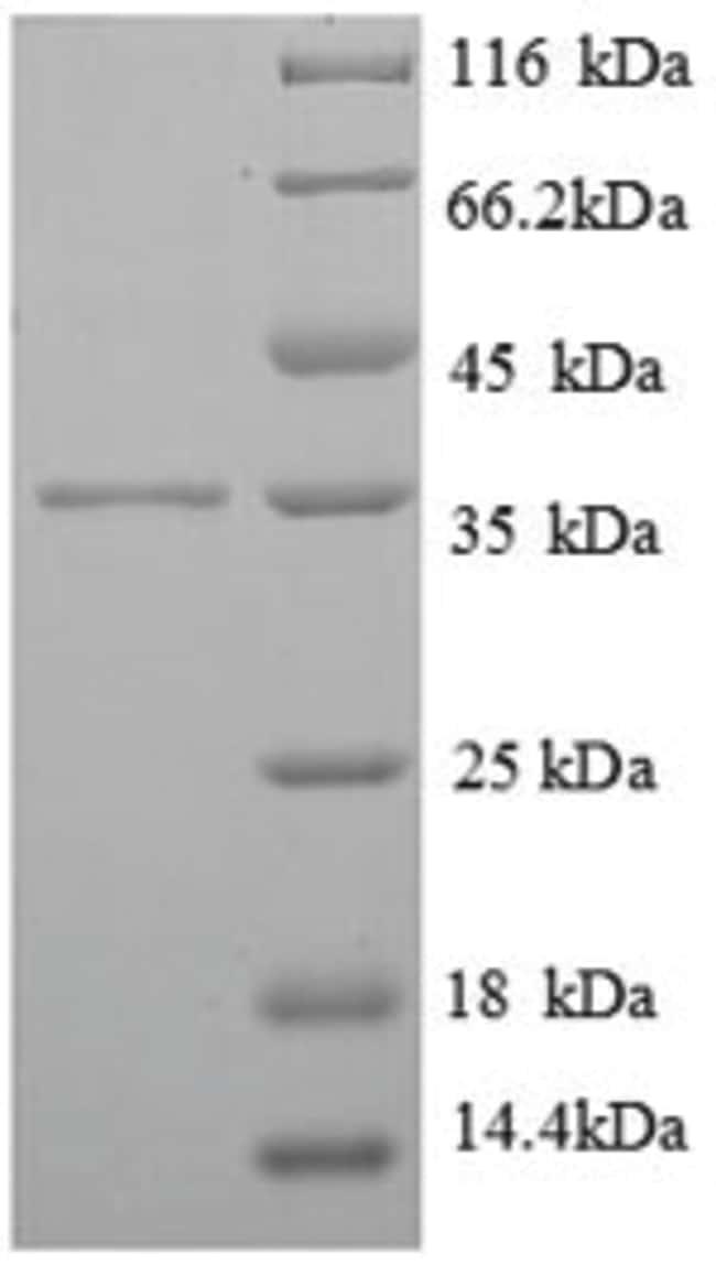 enQuireBio™Recombinant Human FCER1G Protein 50μg enQuireBio™Recombinant Human FCER1G Protein
