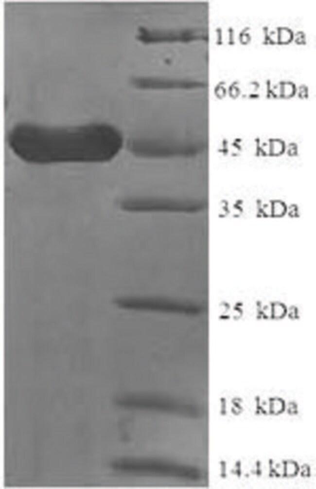 enQuireBio™Recombinant Human CD23 / FCER2 / FCER2A Protein 1mg enQuireBio™Recombinant Human CD23 / FCER2 / FCER2A Protein