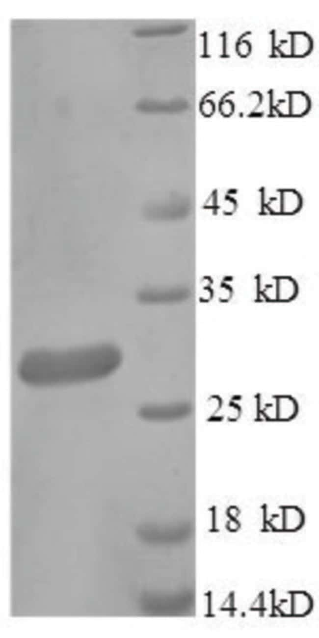 enQuireBio™Recombinant Human IgG receptor FcRn large subunit p51 Protein 100μg enQuireBio™Recombinant Human IgG receptor FcRn large subunit p51 Protein