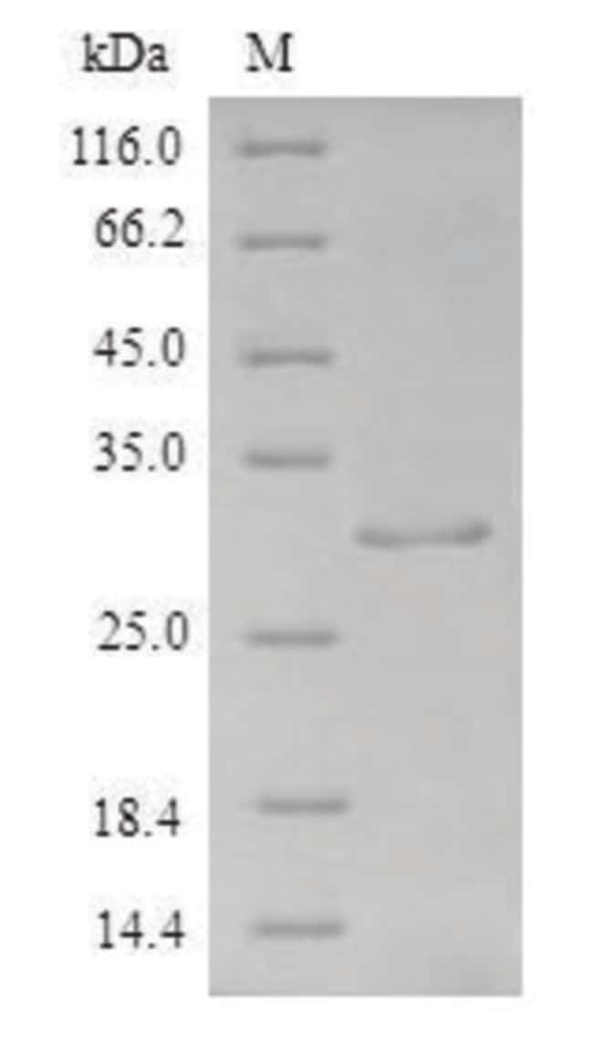 enQuireBio™Recombinant Human aFGF / FGF1 Protein 100μg enQuireBio™Recombinant Human aFGF / FGF1 Protein